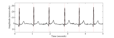 Example of electrocardiogram waveform.