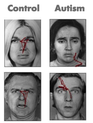 Autism facial expression recognition test