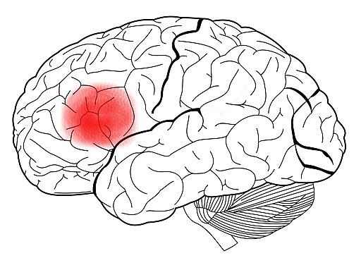 An illustration of the human brain with Broca's Area highlighted.