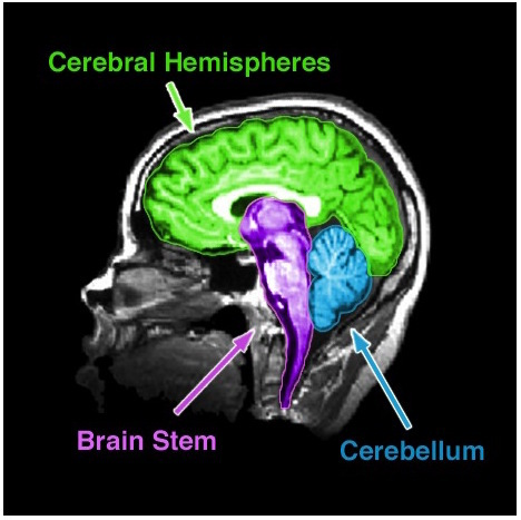 An MRI of the human brain delineating three major structures: the cerebral hemispheres, brain stem, and cerebellum.