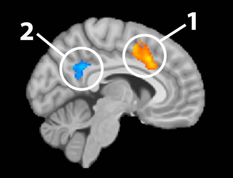 Example of fMRI analyses overlaid on an sMRI image.