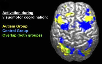 "fMRI-derived image of difference between brains of autistic and control groups. Legend reads ""Activation during visuomotor coordination: Autism Group [yellow], Control Group [Blue], Overlap (both groups) [green]""."