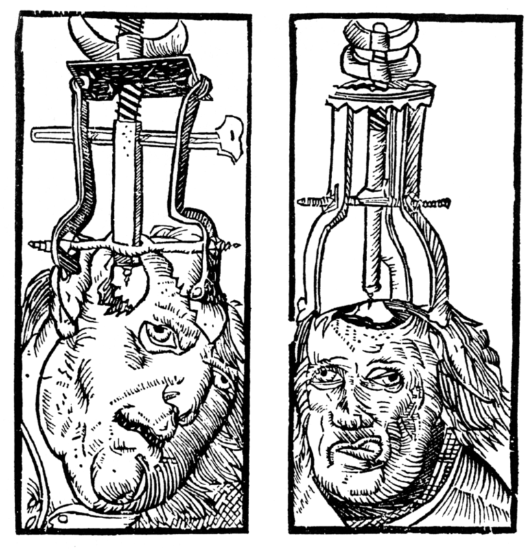 Engraving by Peter Treveris of a trepanation. A type of drill is clamped onto the head and used to bore a hole through the skull and expose the dura matter.